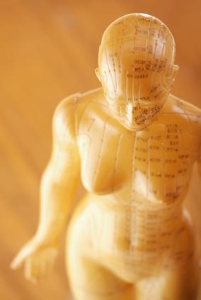 afvallen met acupunctuur in deventer